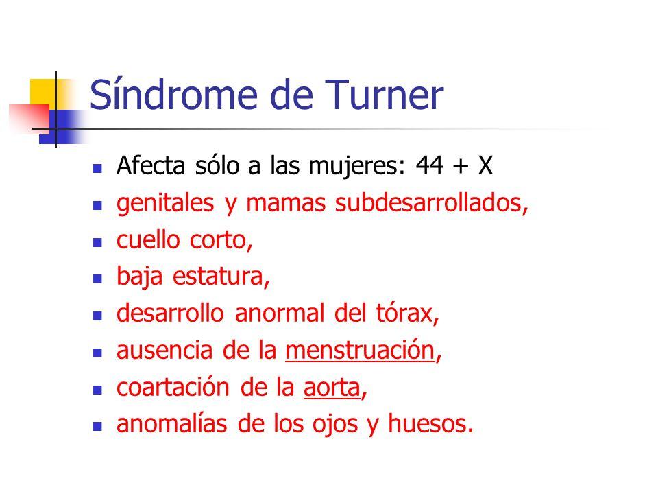 Síndrome de Turner Afecta sólo a las mujeres: 44 + X genitales y mamas subdesarrollados, cuello corto, baja estatura, desarrollo anormal del tórax, au