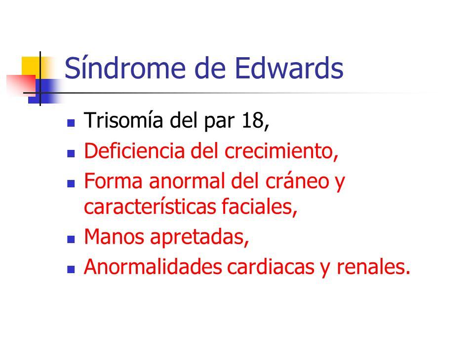 Síndrome de Edwards Trisomía del par 18, Deficiencia del crecimiento, Forma anormal del cráneo y características faciales, Manos apretadas, Anormalida