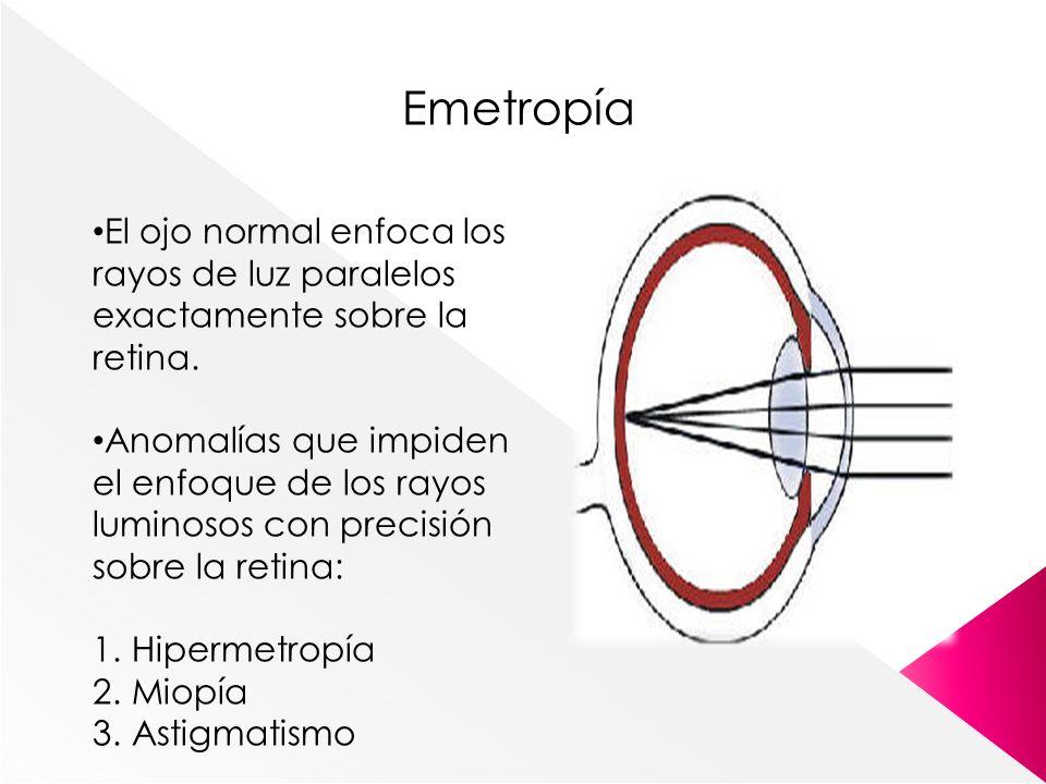 Emetropía El ojo normal enfoca los rayos de luz paralelos exactamente sobre la retina. Anomalías que impiden el enfoque de los rayos luminosos con pre
