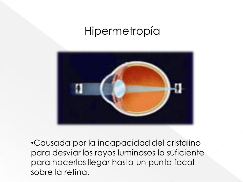 Hipermetropía Causada por la incapacidad del cristalino para desviar los rayos luminosos lo suficiente para hacerlos llegar hasta un punto focal sobre
