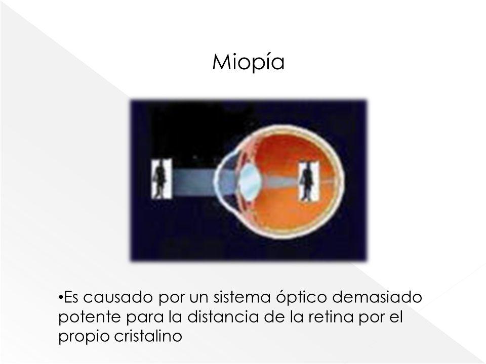 Miopía Es causado por un sistema óptico demasiado potente para la distancia de la retina por el propio cristalino