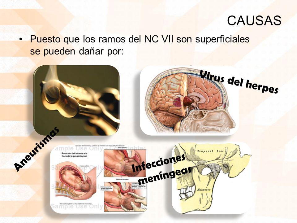 CAUSAS Puesto que los ramos del NC VII son superficiales se pueden dañar por: Aneurismas Infecciones meníngeas Virus del herpes
