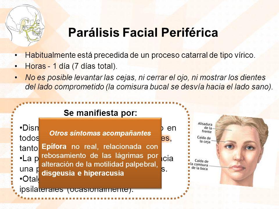 Parálisis Facial Periférica Habitualmente está precedida de un proceso catarral de tipo vírico. Horas - 1 día (7 días total). No es posible levantar l