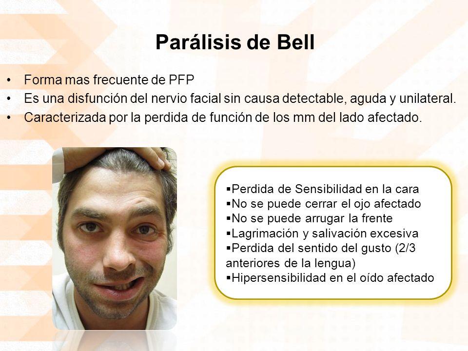 Parálisis de Bell Forma mas frecuente de PFP Es una disfunción del nervio facial sin causa detectable, aguda y unilateral. Caracterizada por la perdid