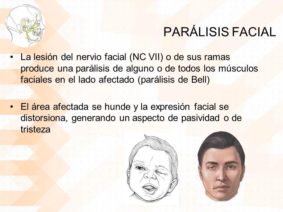 PARÁLISIS FACIAL La lesión del nervio facial (NC VII) o de sus ramas produce una parálisis de alguno o de todos los músculos faciales en el lado afectado (parálisis de Bell) El área afectada se hunde y la expresión facial se distorsiona, generando un aspecto de pasividad o de tristeza