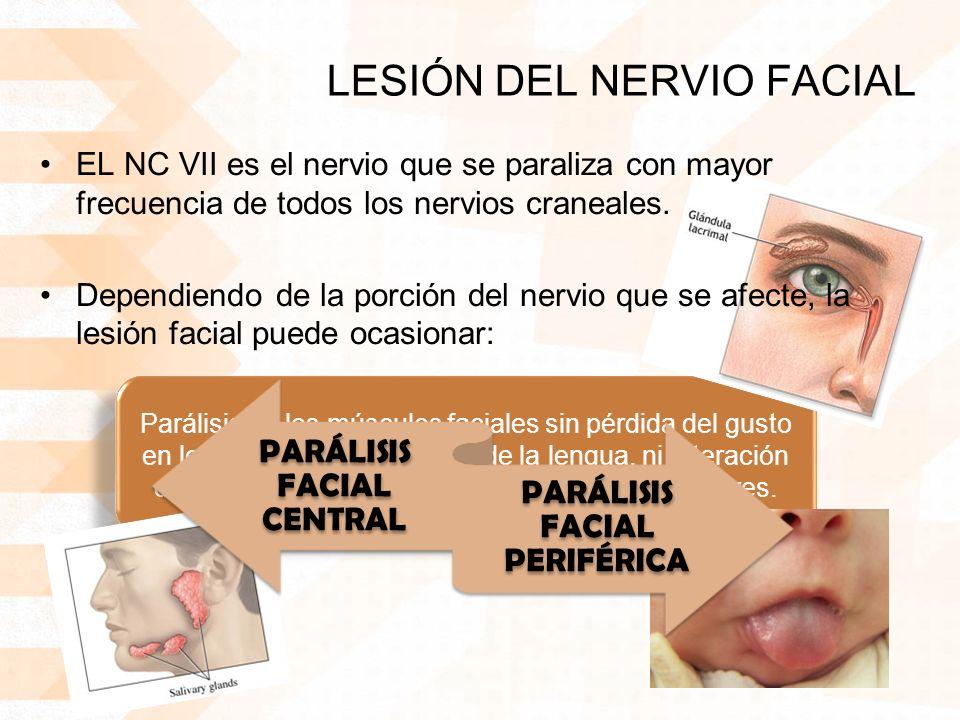 LESIÓN DEL NERVIO FACIAL Parálisis de los músculos faciales sin pérdida del gusto en los dos tercios anteriores de la lengua, ni alteración de la secreción de las glándulas lagrimal y salivares.