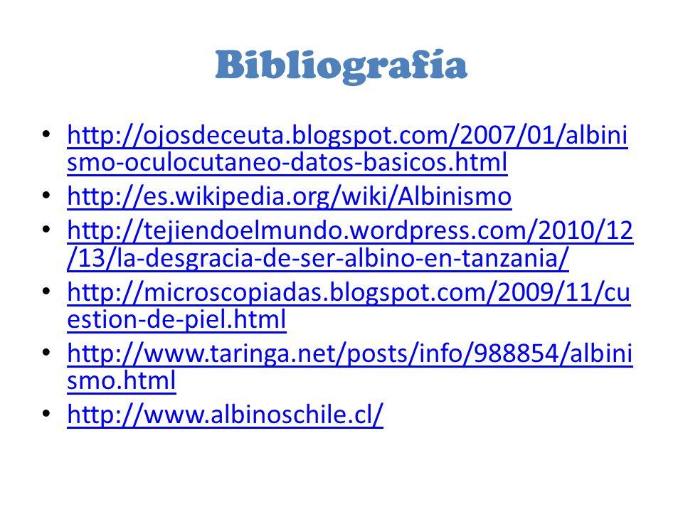 Bibliografía http://ojosdeceuta.blogspot.com/2007/01/albini smo-oculocutaneo-datos-basicos.html http://ojosdeceuta.blogspot.com/2007/01/albini smo-oculocutaneo-datos-basicos.html http://es.wikipedia.org/wiki/Albinismo http://tejiendoelmundo.wordpress.com/2010/12 /13/la-desgracia-de-ser-albino-en-tanzania/ http://tejiendoelmundo.wordpress.com/2010/12 /13/la-desgracia-de-ser-albino-en-tanzania/ http://microscopiadas.blogspot.com/2009/11/cu estion-de-piel.html http://microscopiadas.blogspot.com/2009/11/cu estion-de-piel.html http://www.taringa.net/posts/info/988854/albini smo.html http://www.taringa.net/posts/info/988854/albini smo.html http://www.albinoschile.cl/