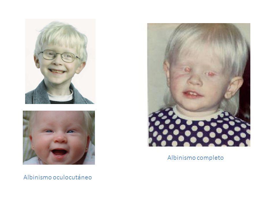 ¿Es hereditario.Sí; aparece con la combinación de los dos padres portadores del gen recesivo.