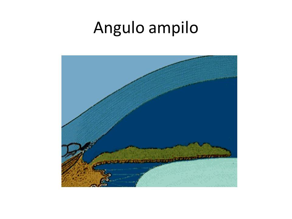 GLAUCOMA DE ÁNGULO ESTRECHO El ángulo camerular es estrecho y en algunas ocasiones se puede cerrar. Esto detiene en forma súbita el drenaje de acuoso.