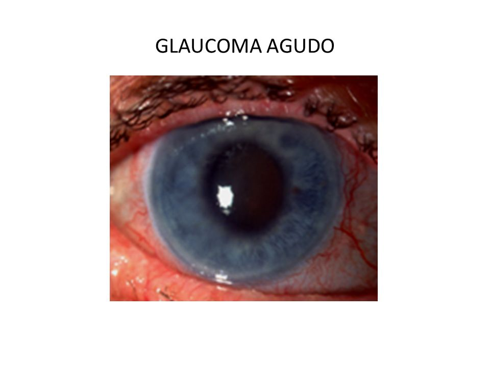 SÍNTOMAS En el glaucoma agudo hay manifestaciones muy importantes: Dolor ocular y cefalea intensos. Visión borrosa. Percepción de halos alrededor de l