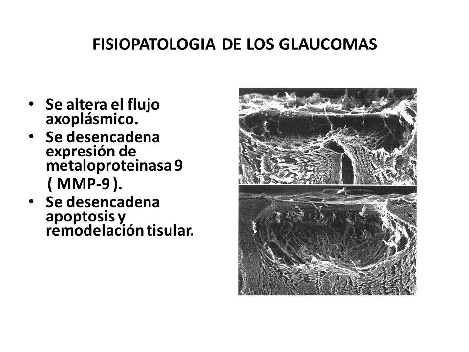 FISIOPATOLOGÍA DE LOS GLAUCOMAS La presión comprime vasos sanguíneos y al nervio óptico. Se produce stress isquémico y mecánico. Se produce hipoxia y