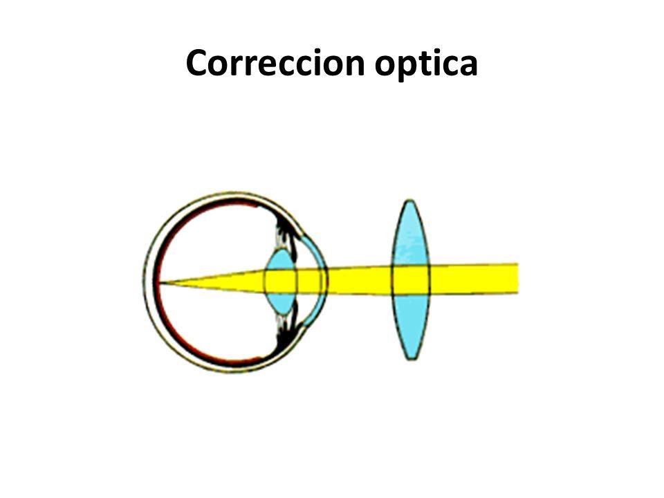 No ve bien de lejos, pero puede ver claramente de cerca Se produce cuando la imagen se enfoca delante de la retina Miopia