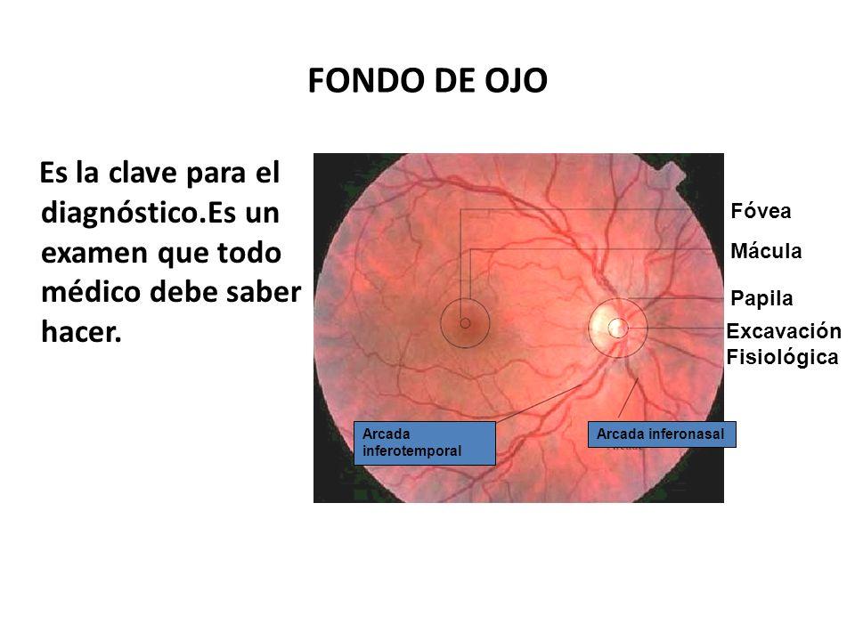 DIAGNÓSTICO DEL GLAUCOMA Fondo de Ojo Presión Intraocular Campo Visual