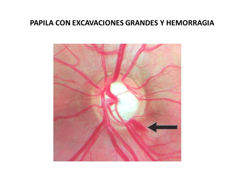 Papila glaucomatosa