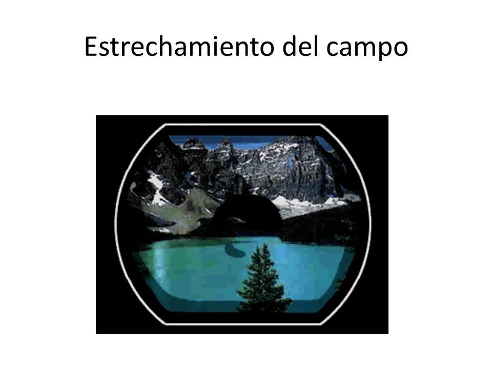 AUMENTO DE LA MANCHA CIEGA Y ESCOTOMA ARQUEADO