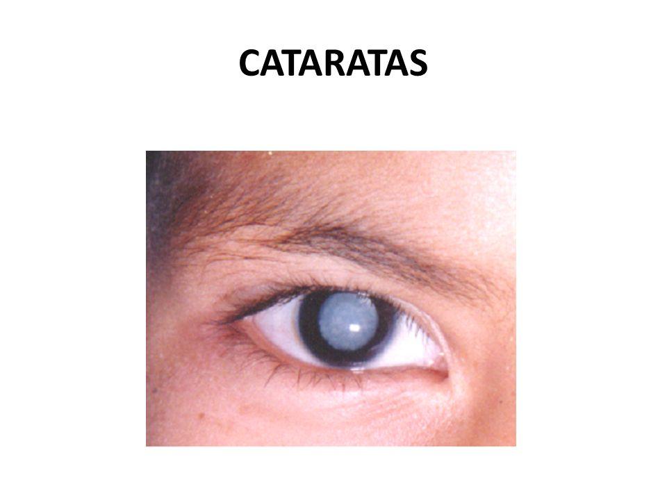 Cataratas El cristalino del ojo normalmente es transparente y cuando se opacifica la afección se conoce como catarata.