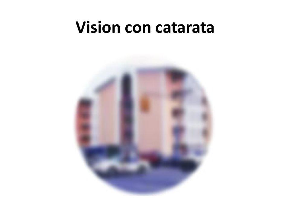 Manifestaciones Visión borrosa La necesidad de cambiar la prescripción de sus lentes o lentes de contacto con frecuencia Dificultad al conducir de noc