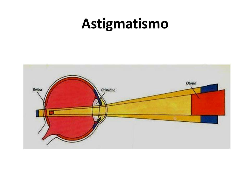 Los objetos cercanos se ven borrosos porque el enfoque de cerca se dificulta, las imágenes se enfocan despues de la retina. Hipermetropia