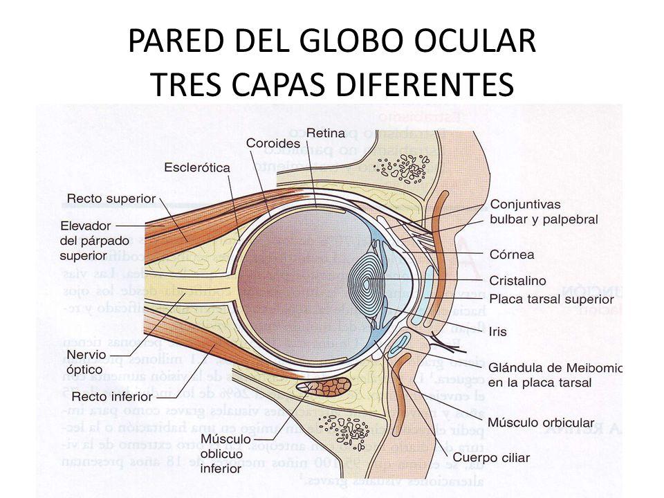 GLAUCOMA DE ÁNGULO ESTRECHO El ángulo camerular es estrecho y en algunas ocasiones se puede cerrar.