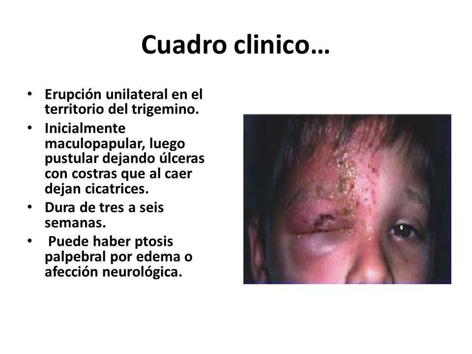 Herpes zoster Es la manifestación clínica de la reactivación del virus varicela-zoster, cuya primoinfección se manifiesta como varicela.