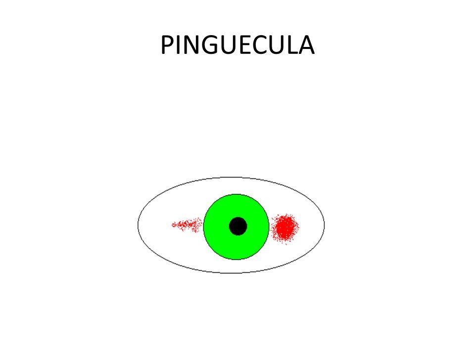 PINGUECULA.... CARACTERISTICAS CLINICAS LA PINGUECULA ES UNA LESION DE FORMA REDONDEADA, LEVEMENTE ELEVADA, DE COLOR AMARILLO-SALMON CUANDO NO TIENE A