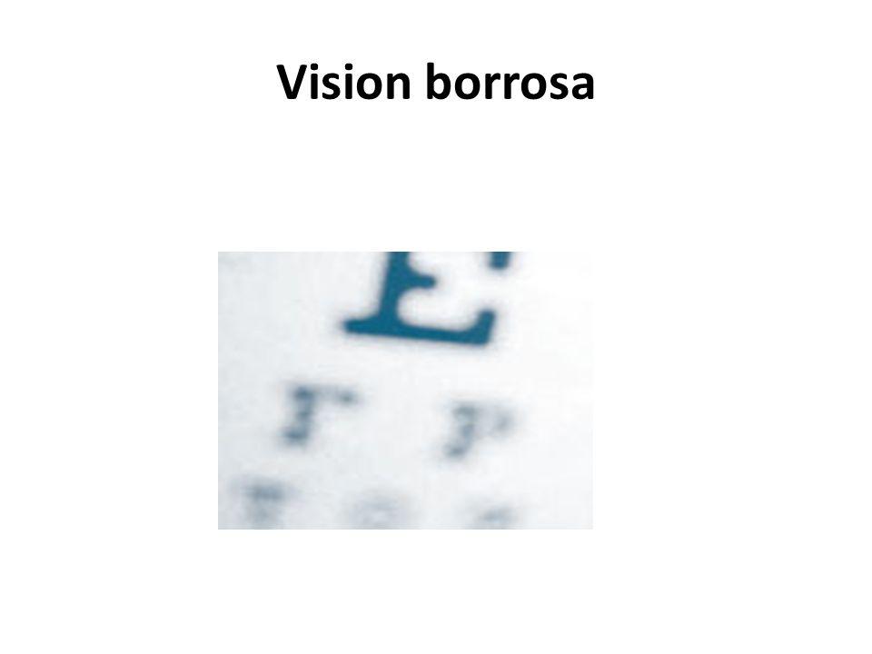 Vision borrosa