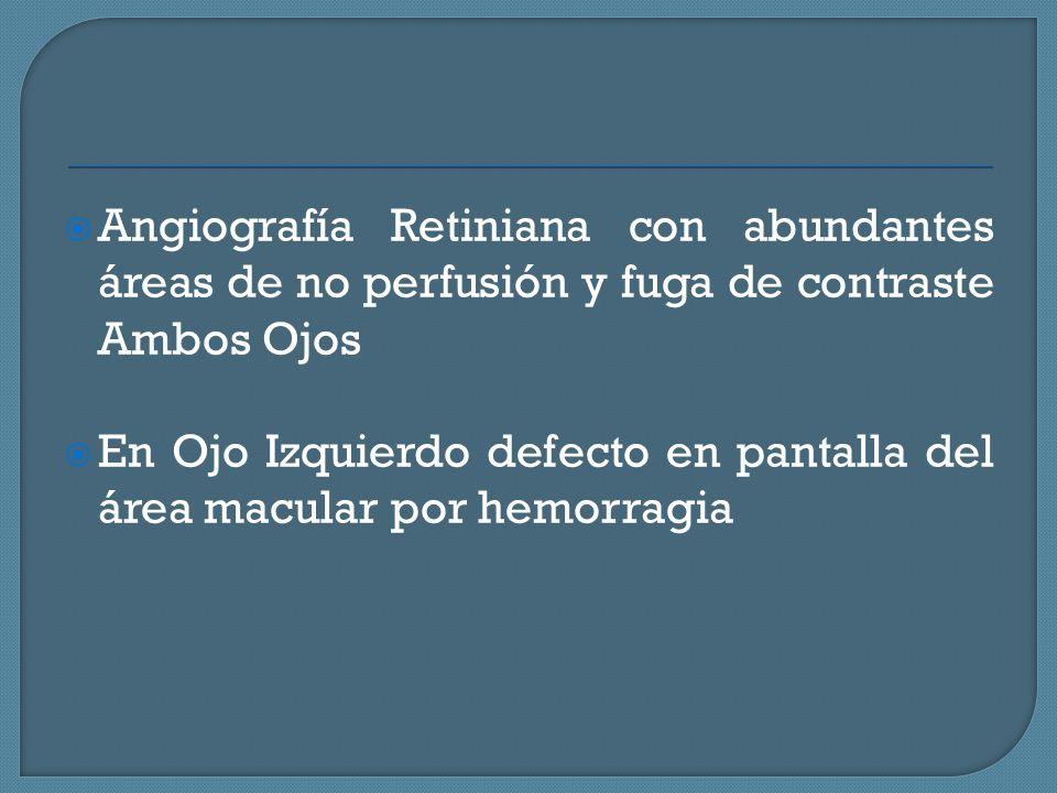Angiografía Retiniana con abundantes áreas de no perfusión y fuga de contraste Ambos Ojos En Ojo Izquierdo defecto en pantalla del área macular por hemorragia