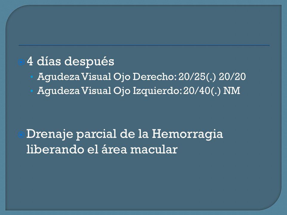 4 días después Agudeza Visual Ojo Derecho: 20/25(.) 20/20 Agudeza Visual Ojo Izquierdo: 20/40(.) NM Drenaje parcial de la Hemorragia liberando el área macular