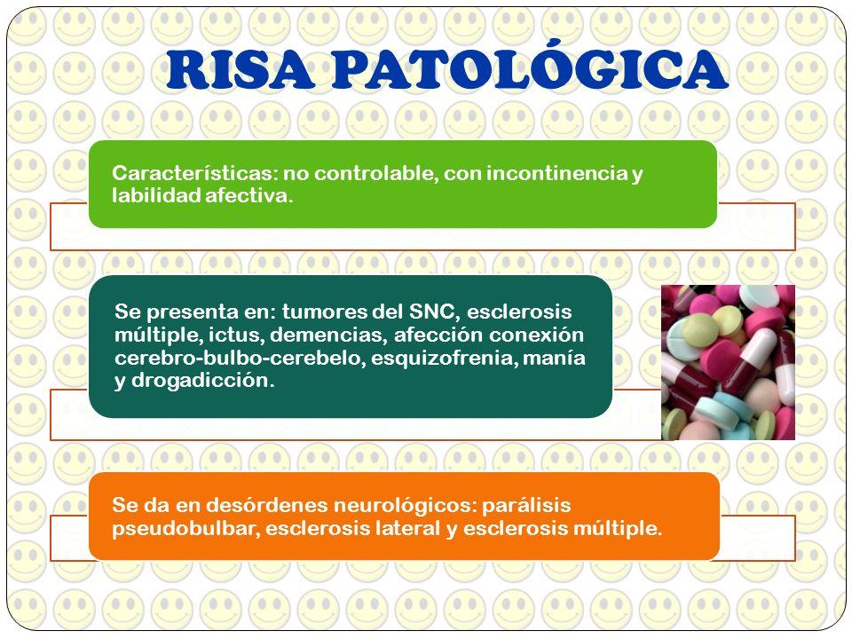 RISA PATOLÓGICA Características: no controlable, con incontinencia y labilidad afectiva. Se da en desórdenes neurológicos: parálisis pseudobulbar, esc