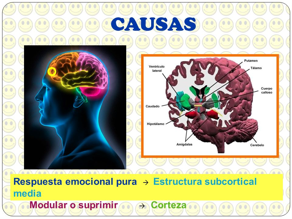CAUSAS Respuesta emocional pura Estructura subcortical media Modular o suprimir Corteza