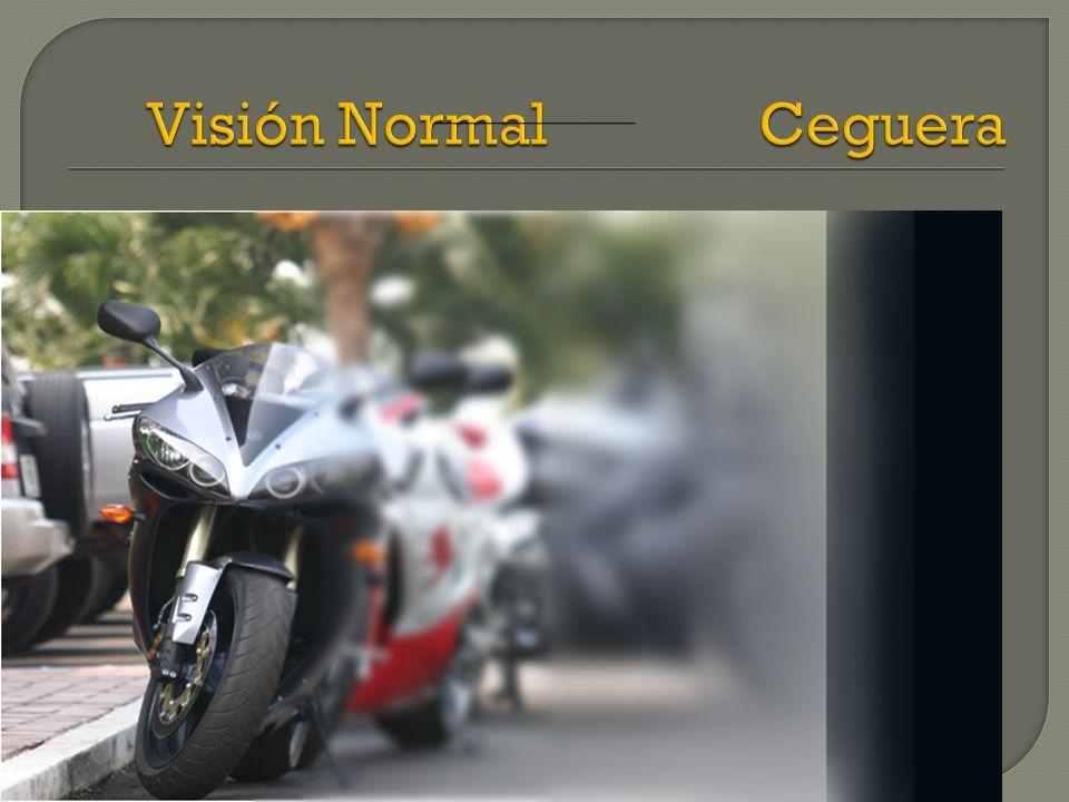 El conocimiento en baja Visión permite intervenir de manera temprana en el manejo de la habilitación visual (estimulación visual) o de la rehabilitación visual.
