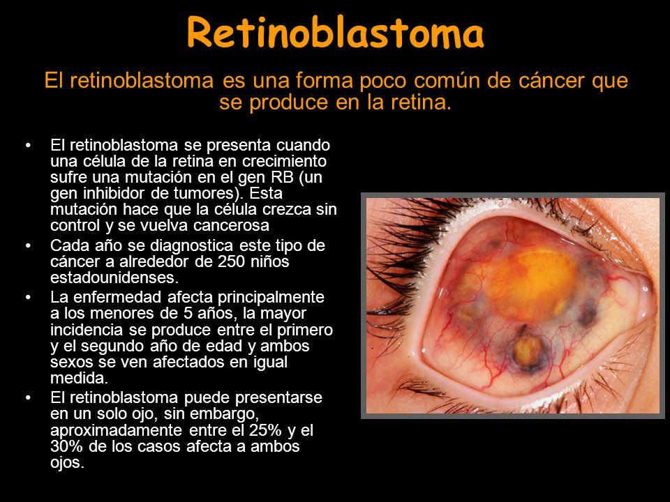 Retinoblastoma El retinoblastoma es una forma poco común de cáncer que se produce en la retina. El retinoblastoma se presenta cuando una célula de la