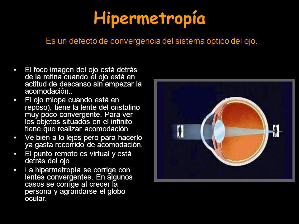 Hipermetropía Es un defecto de convergencia del sistema óptico del ojo. El foco imagen del ojo está detrás de la retina cuando el ojo está en actitud