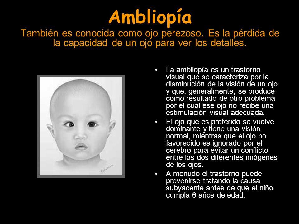 Ambliopía También es conocida como ojo perezoso. Es la pérdida de la capacidad de un ojo para ver los detalles. La ambliopía es un trastorno visual qu