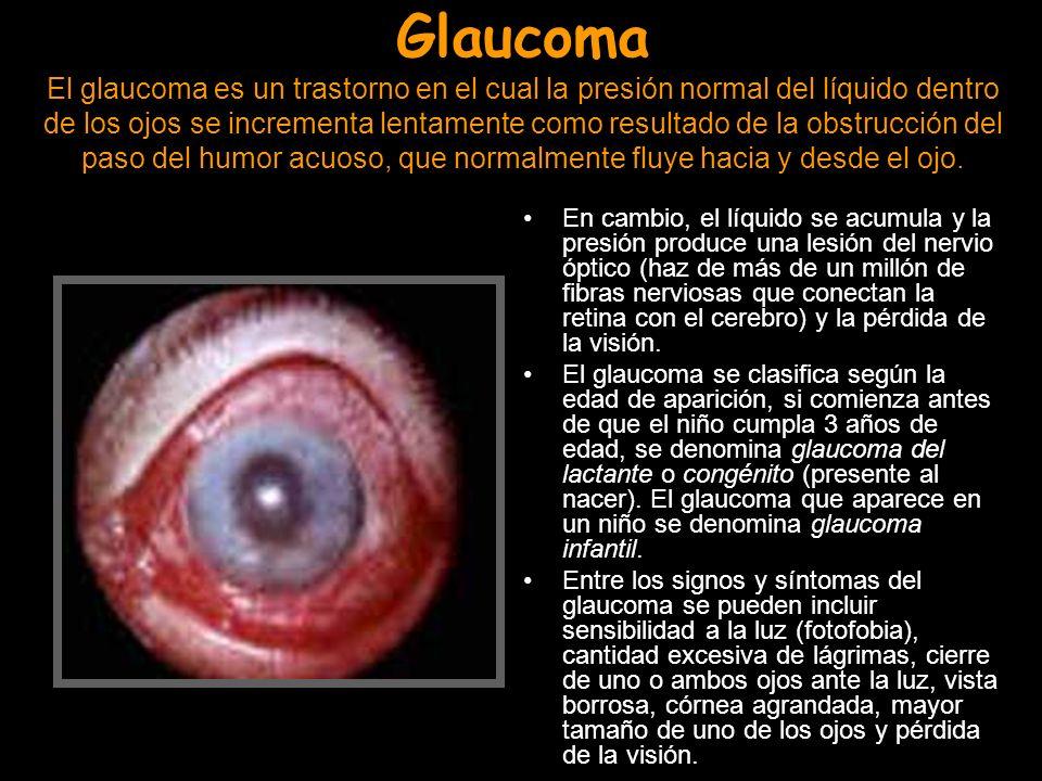 Glaucoma El glaucoma es un trastorno en el cual la presión normal del líquido dentro de los ojos se incrementa lentamente como resultado de la obstruc