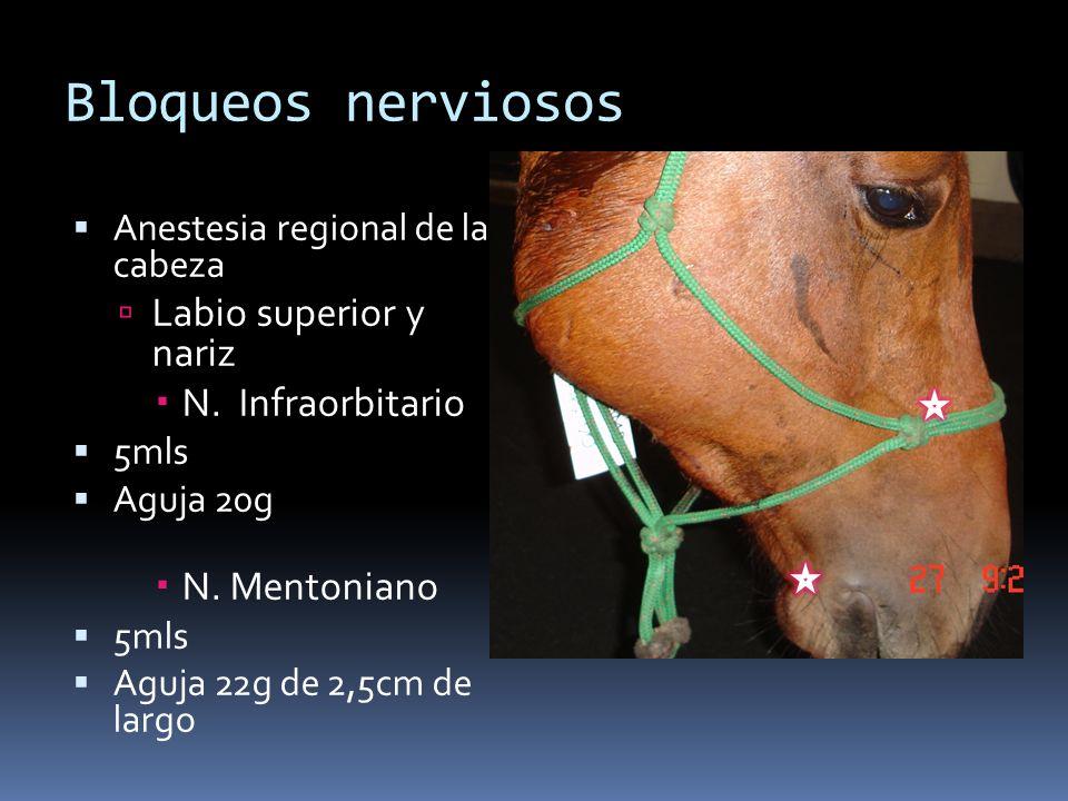 Bloqueos nerviosos Anestesia regional de la cabeza Labio superior y nariz N. Infraorbitario 5mls Aguja 20g N. Mentoniano 5mls Aguja 22g de 2,5cm de la