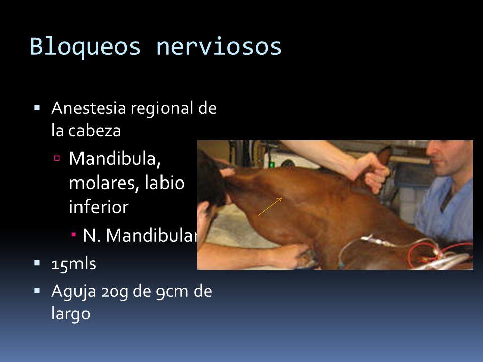 Bloqueos nerviosos Anestesia regional de la cabeza Mandibula, molares, labio inferior N. Mandibular 15mls Aguja 20g de 9cm de largo