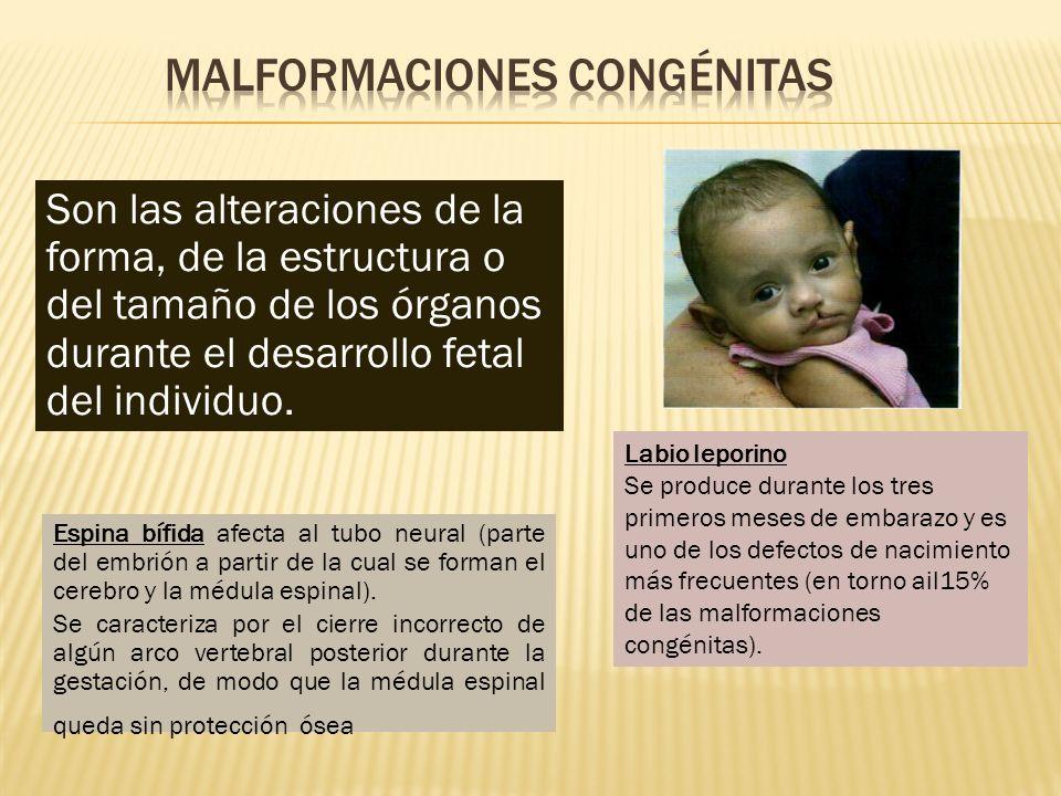 Son las alteraciones de la forma, de la estructura o del tamaño de los órganos durante el desarrollo fetal del individuo. Labio leporino Se produce du