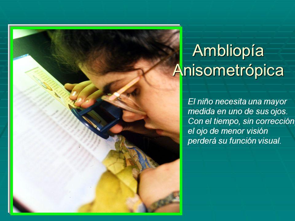 Ambliopía Anisometrópica El niño necesita una mayor medida en uno de sus ojos. Con el tiempo, sin corrección, el ojo de menor visión perderá su funció