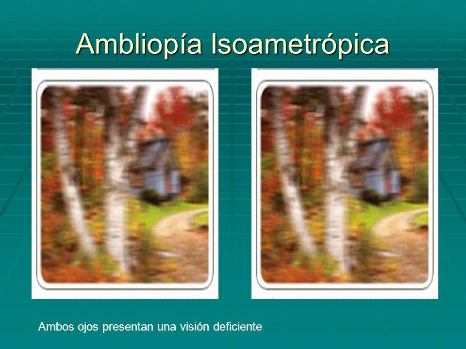 Ambliopía Isoametrópica Ambos ojos presentan una visión deficiente