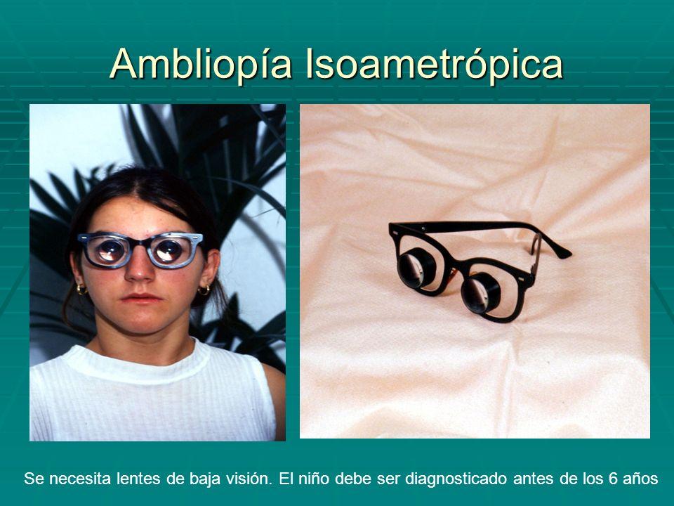 Ambliopía Isoametrópica Se necesita lentes de baja visión. El niño debe ser diagnosticado antes de los 6 años