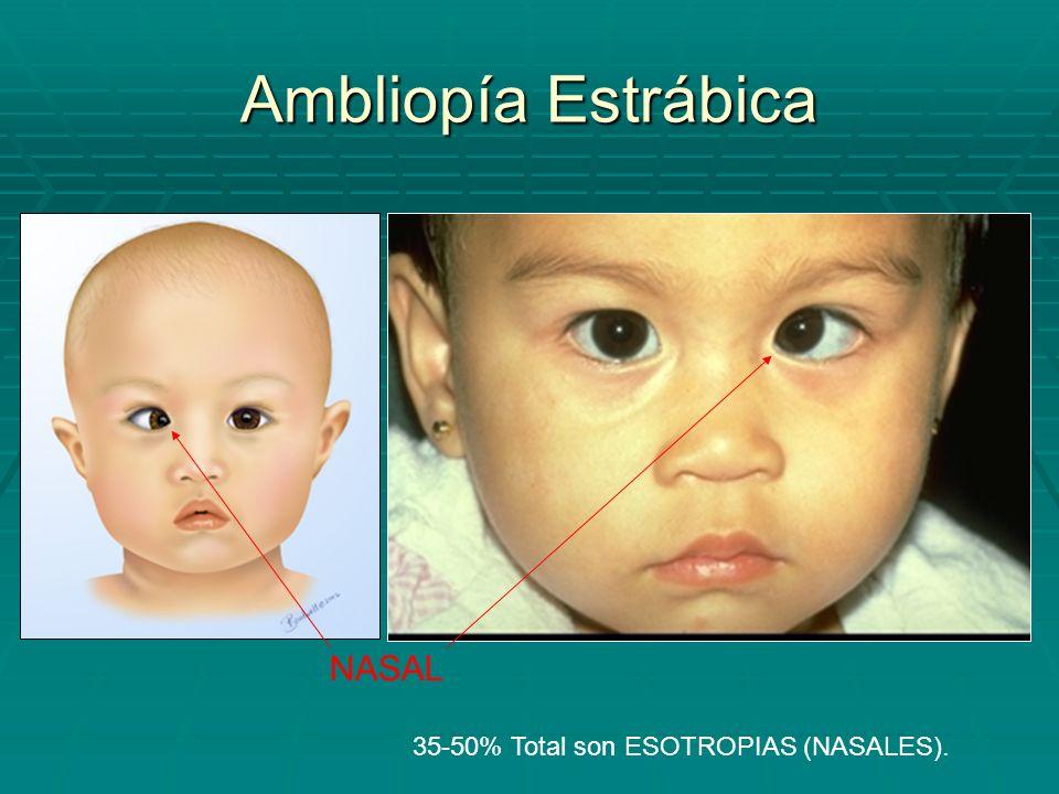 Ambliopía Estrábica 35-50% Total son ESOTROPIAS (NASALES). NASAL