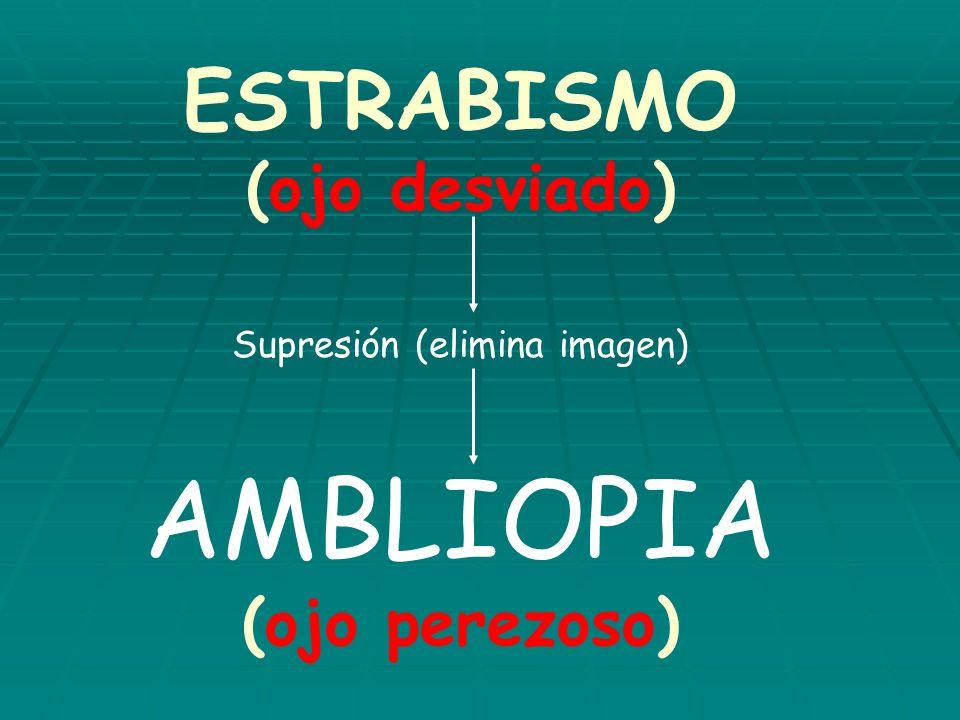 DETECCIÓN TEMPRANA DE LA AMBLIOPIA 4 ELEMENTOS A CONSIDERAR