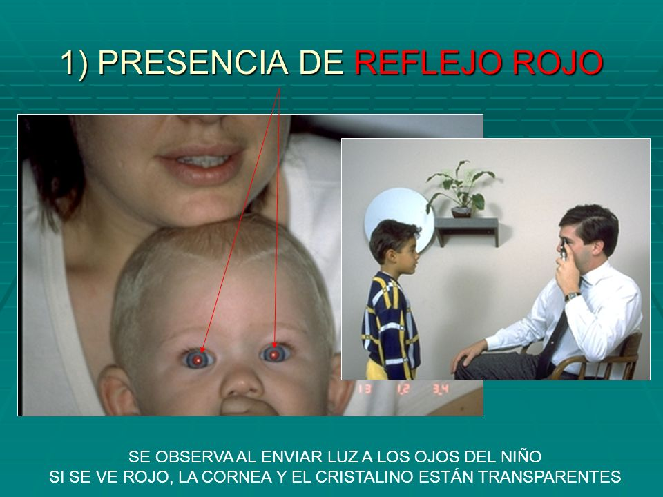 2) DETERMINAR AGUDEZA VISUAL CARTILLAS PARA MEDIR AV EN NIÑOS