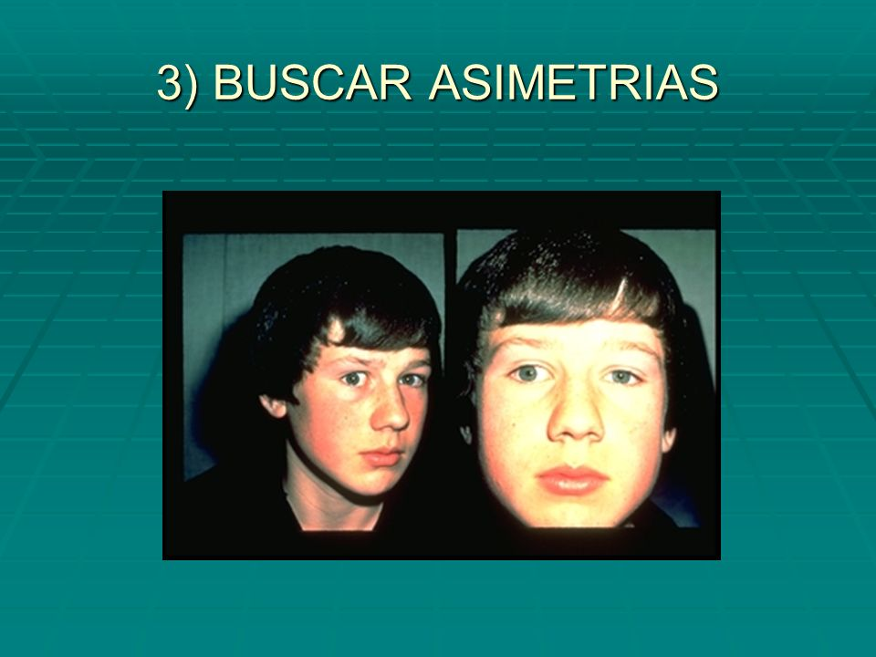 3) BUSCAR ASIMETRIAS