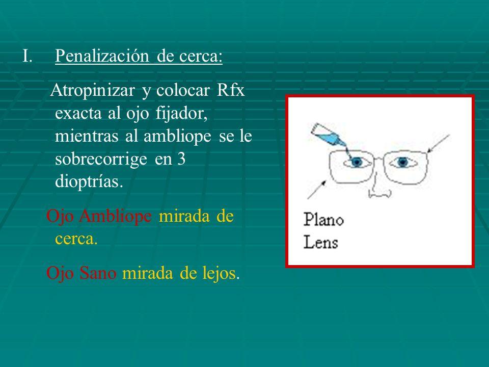 I.Penalización de cerca: Atropinizar y colocar Rfx exacta al ojo fijador, mientras al ambliope se le sobrecorrige en 3 dioptrías.