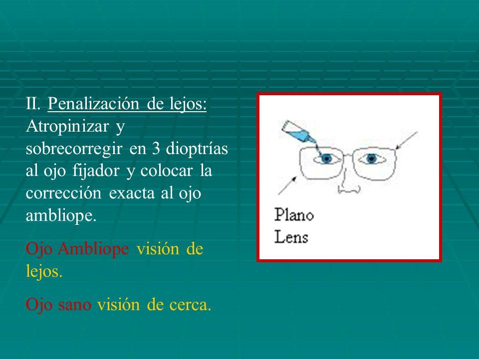 II. Penalización de lejos: Atropinizar y sobrecorregir en 3 dioptrías al ojo fijador y colocar la corrección exacta al ojo ambliope. Ojo Ambliope visi
