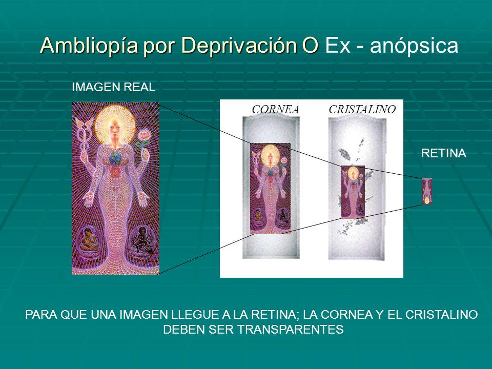 PTOSIS PALPEBRAL LEUCOMA CORNEAL OPACIDAD CRISTALINIANA (catarata) ESTAS ENFERMEDADES NO PERMITEN EL PASO DE LA IMAGEN
