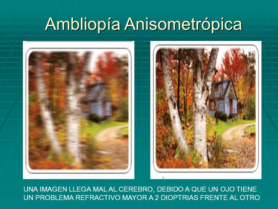 Ambliopía Anisometrópica UNA IMAGEN LLEGA MAL AL CEREBRO, DEBIDO A QUE UN OJO TIENE UN PROBLEMA REFRACTIVO MAYOR A 2 DIOPTRIAS FRENTE AL OTRO