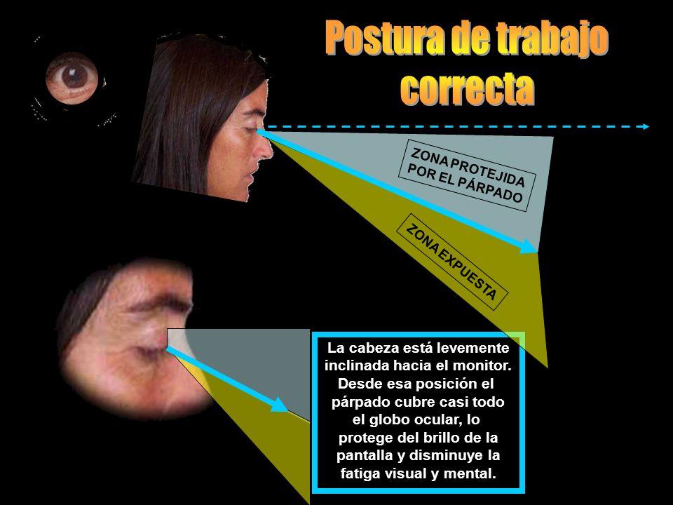 En esta posición la córnea está totalmente expuesta a ser dañada. Esto se puede ver en los hogares, en los centros de estudio públicos y privados en l